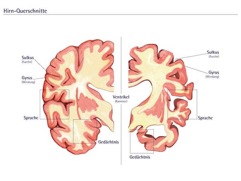 Illustration von Gehirnschnitten mit Alzheimer