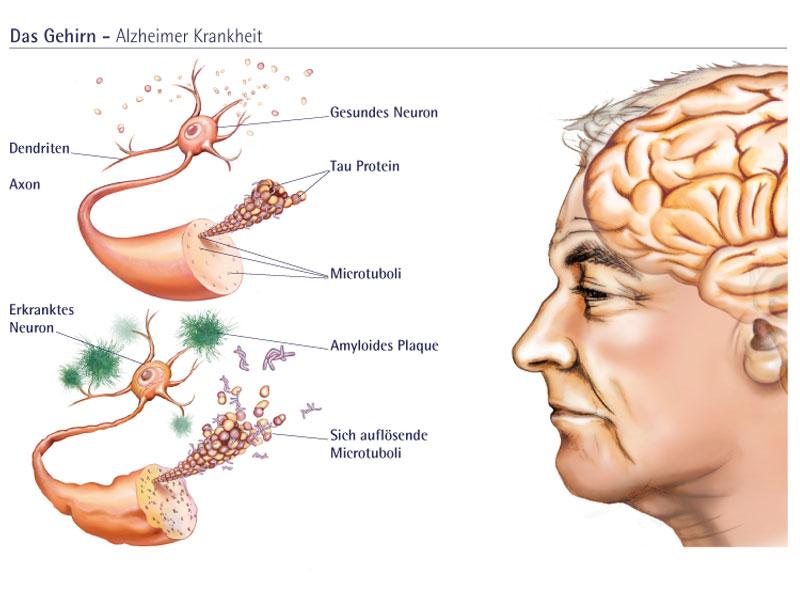 Veränderte Nervenzellen bei der Alzheimer-Krankheit